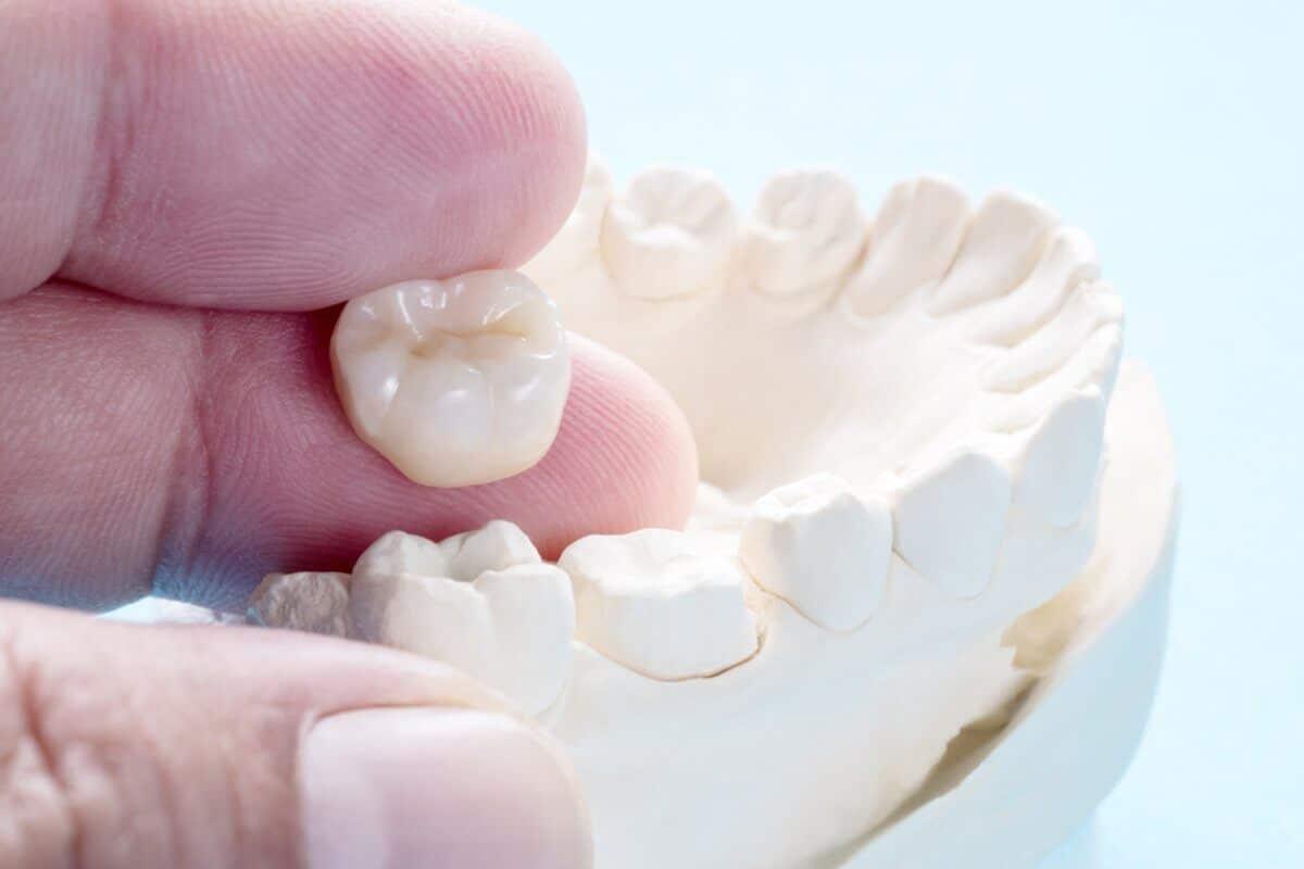 Close Up Of model Of Dental Crown